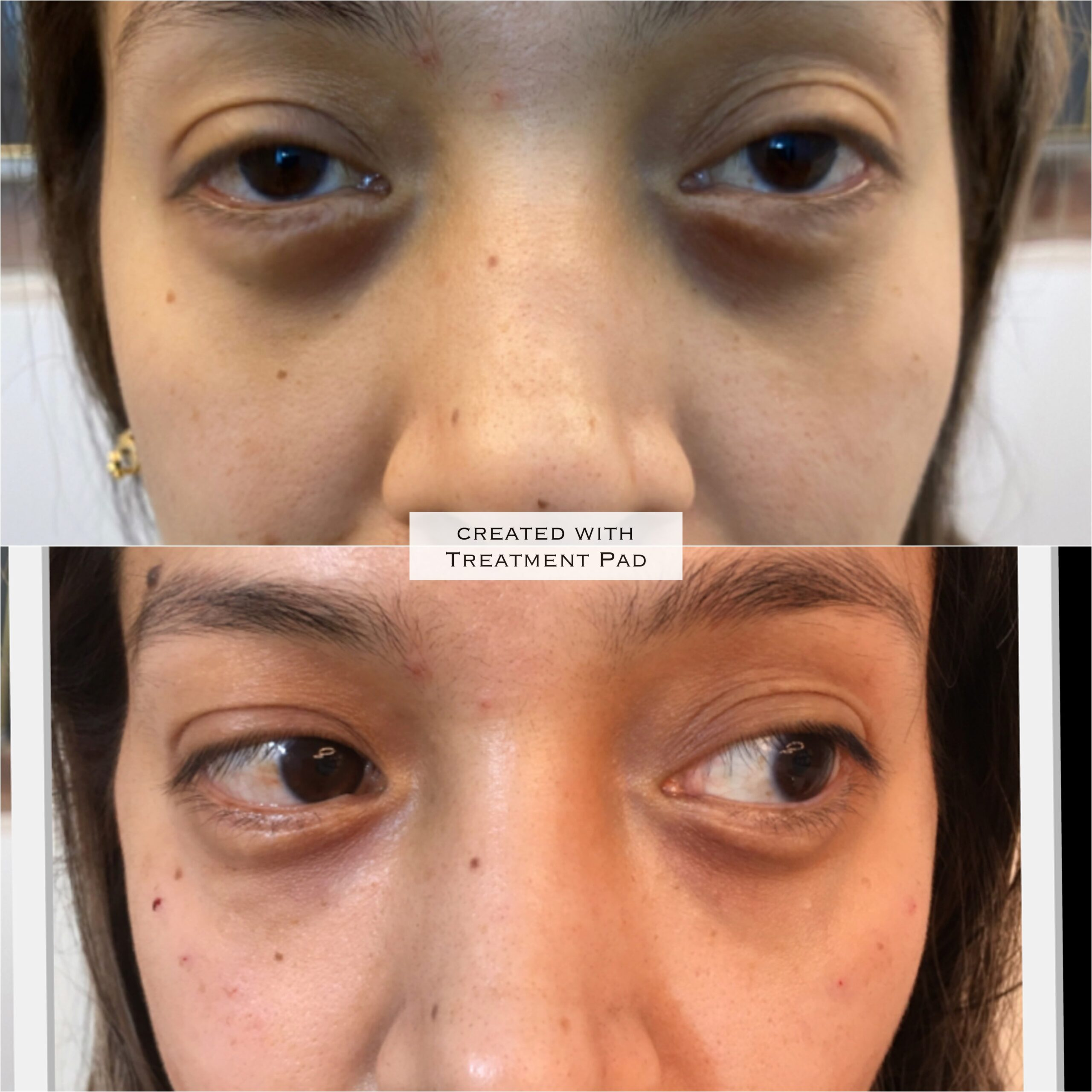 Before and After Eyes