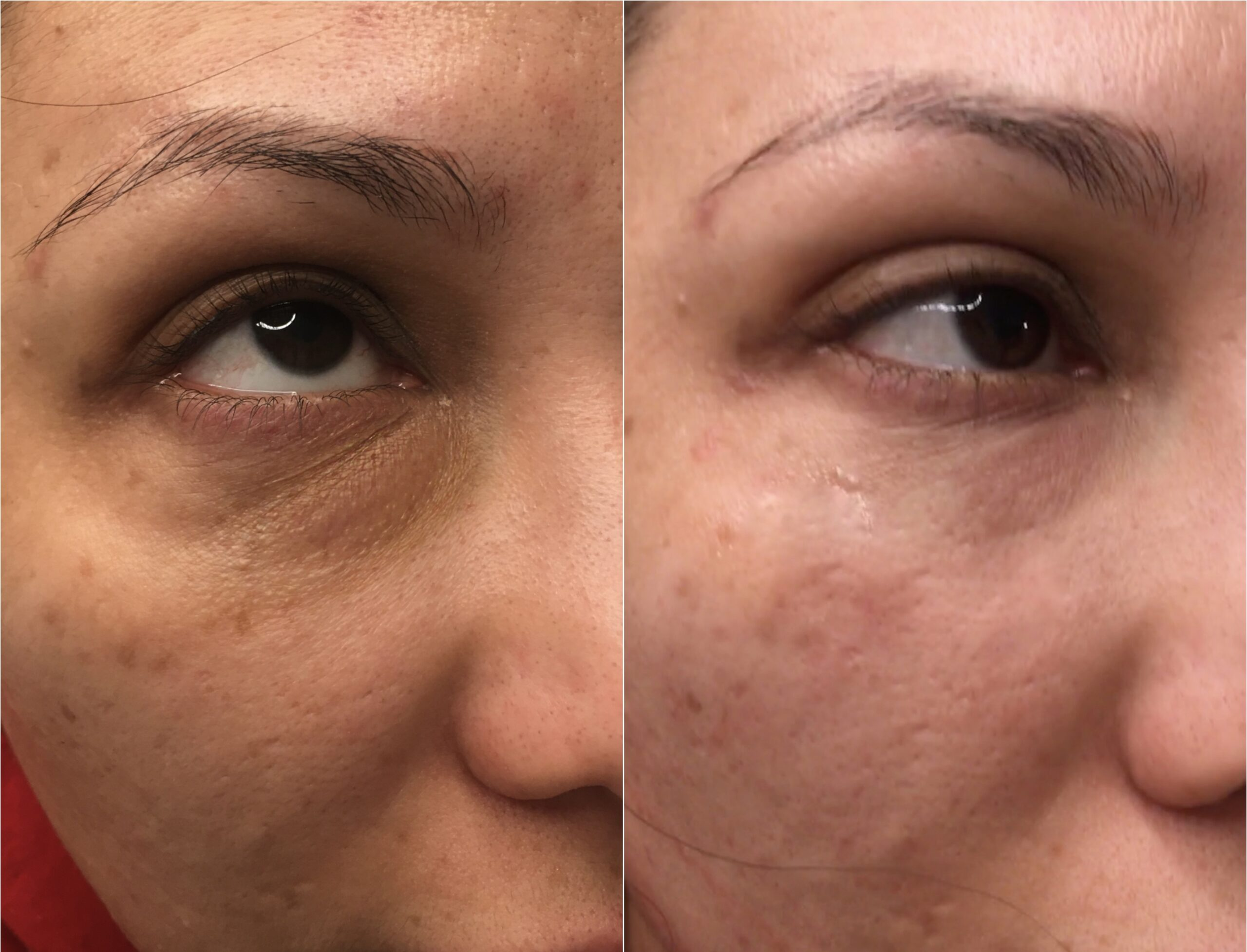 Skin before and After Dr. Mir Treatment