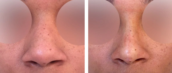 Best non surgical nose job in NYC