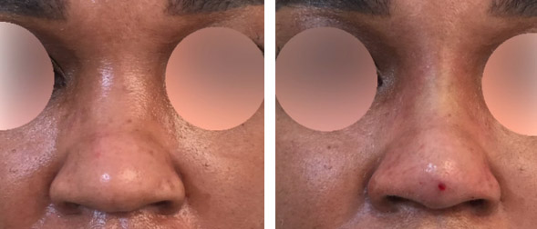 non-surgical rhinoplasty in New York